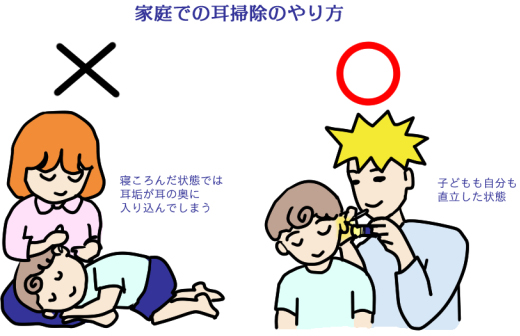 耳掃除○✕